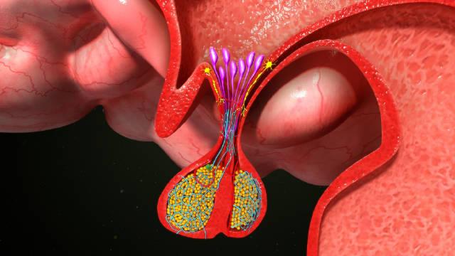 查体发现垂体瘤,该怎么办?医生详细讲解治疗方法