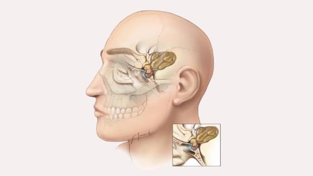 颅咽管瘤多发于儿童!早发现,早治疗效果会更好!家长须注意