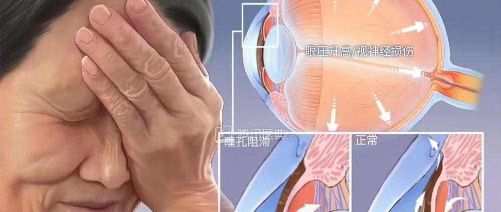 胆真大!68岁阿姨用筋膜枪给眼睛按摩,被送进急诊……
