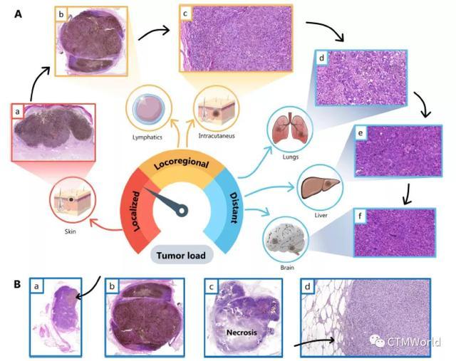 黑色素瘤患者中发现了人类基因组编码的、具有新功能的蛋白质