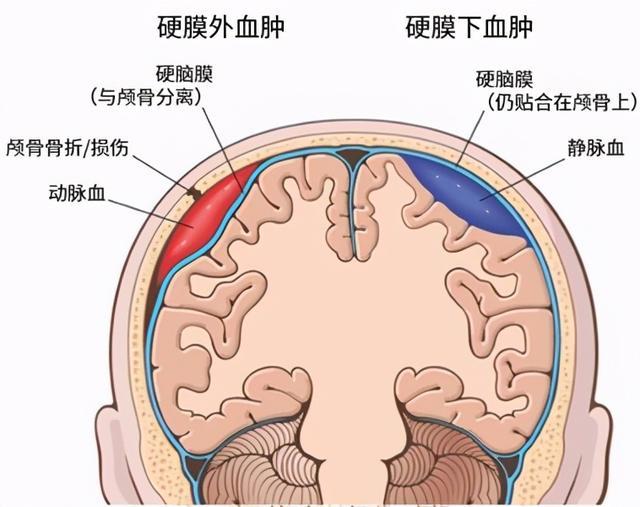 下 膜 血腫 硬 慢性