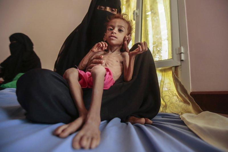 """联合国官员警告:美国将胡塞武装列为""""恐怖组织""""或造成""""四十年来最大规模""""饥荒"""