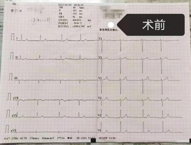 国科大重庆仁济医院成功实施首例左束支区域起博术