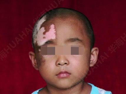 """6岁儿童患白癜风被叫""""白头怪"""",获免费救治康复"""