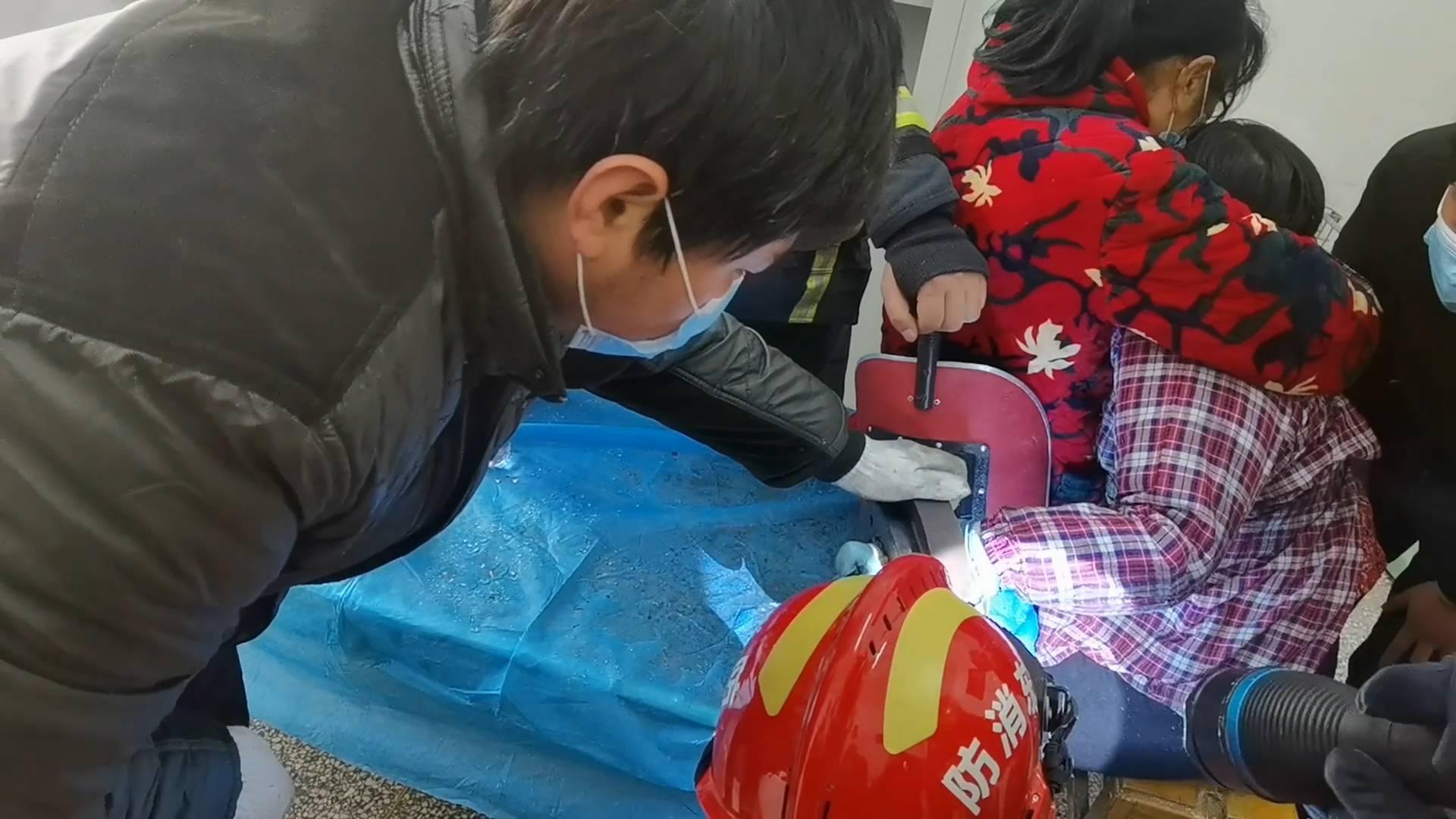 山东聊城一女工人手卡入模具中致手掌严重变形 消防人员紧急救援