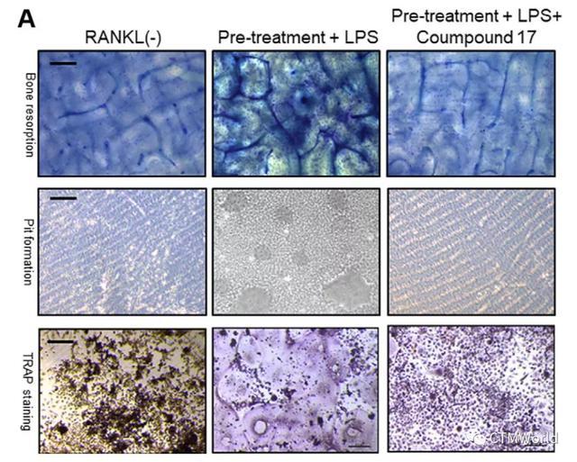某小分子调节PTEN的活性而抑制破骨细胞生成防止炎性骨溶解