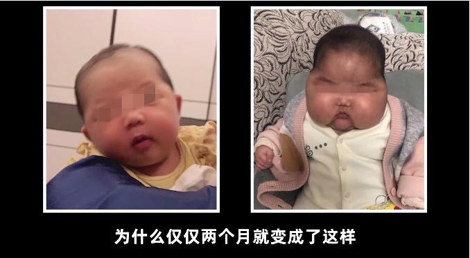 女婴2个月内体重暴增,脸硬得像石头…测评博主:婴儿霜有问题!当地卫健委:涉事产品下架