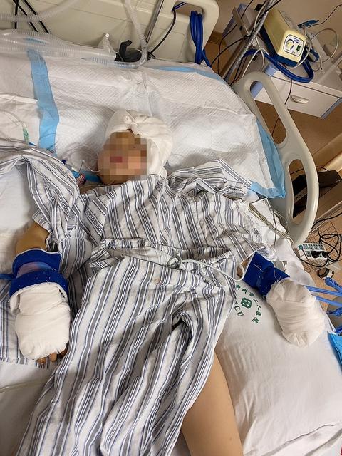 广西罗城一对返乡过年幼儿遭伯母砍杀 致1人死1人送ICU