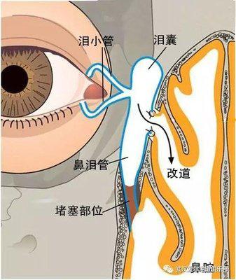 慢性泪囊炎反复发作,首选鼻内镜下鼻腔泪囊吻合术