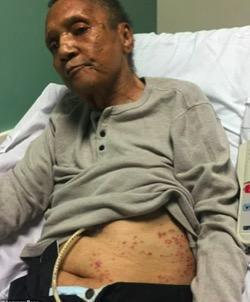美国退伍老兵被火蚁叮咬上百次后身亡 家人状告政府