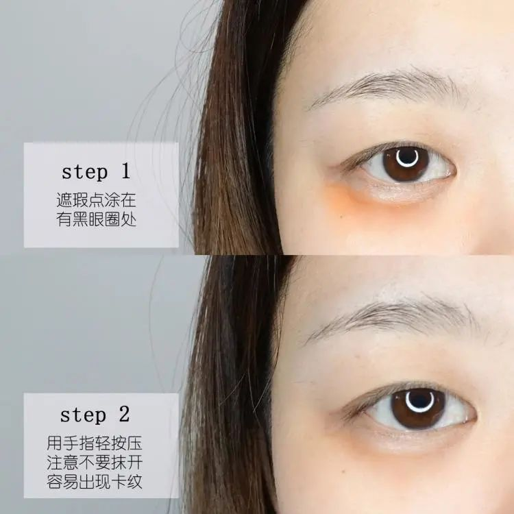 2号站平台注册 眼部护理   这些烦人的眼周问题,这次全要分类解决掉!
