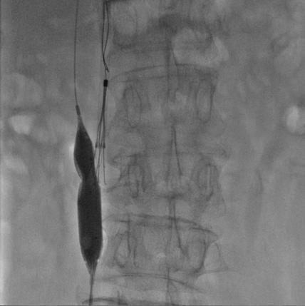 66岁老人骨盆骨折,下腔静脉滤器植入成功预防致命性肺栓塞