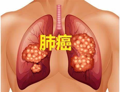 肺癌重磅!Opdivo+化疗新辅助(术前)免疫治疗早期肺癌3期临床成功:显著提高病理学完全缓解!