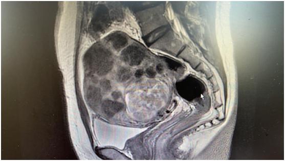威海市中心医院:一次挖除90枚肌瘤,这种病注意早发现、早治疗