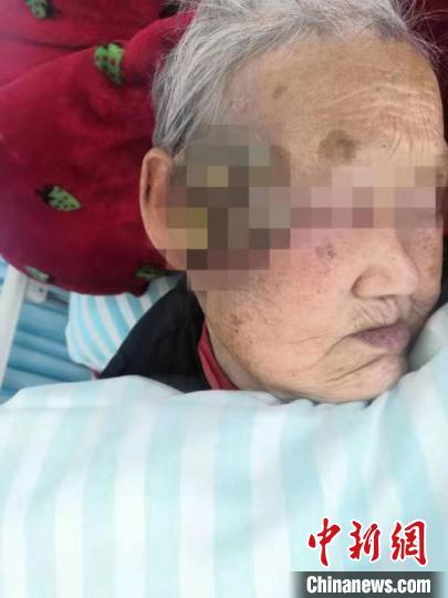 """合肥96岁老人被肿瘤""""吞""""掉小半张脸 医生助其""""换脸"""""""