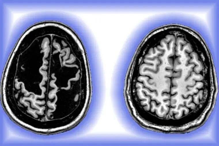 """十几岁才发现大脑缺一块 罕见病例显示大脑惊人""""重塑""""能力"""