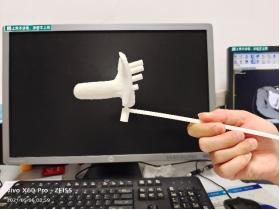 放射源直接放到肿瘤里,湖南省肿瘤医院运用3D打印技术精准放疗治妇科肿瘤