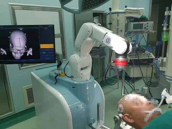 开拓脑出血治疗新视野