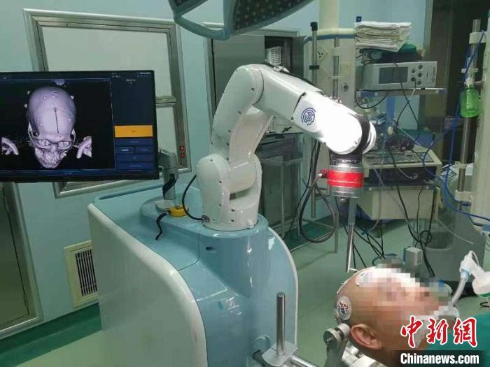 上海专家成功使用3D结构光手术机器人治疗脑出血 简便、高效、精准