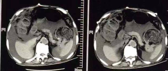 快速识别 4 种常见 CT 影像特征!