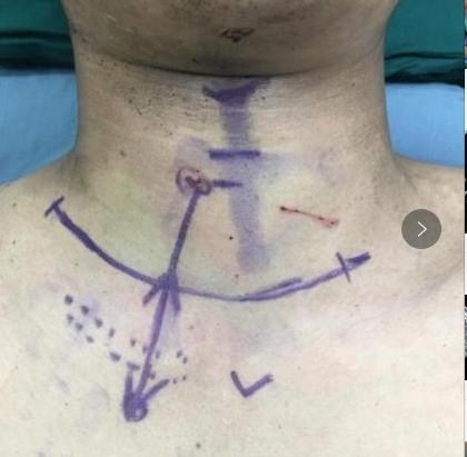 手术中同仁大夫都屏住了呼吸