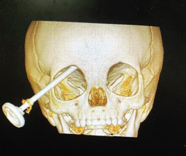 钢针从右眼刺入2岁男童大脑医生10秒拔针!