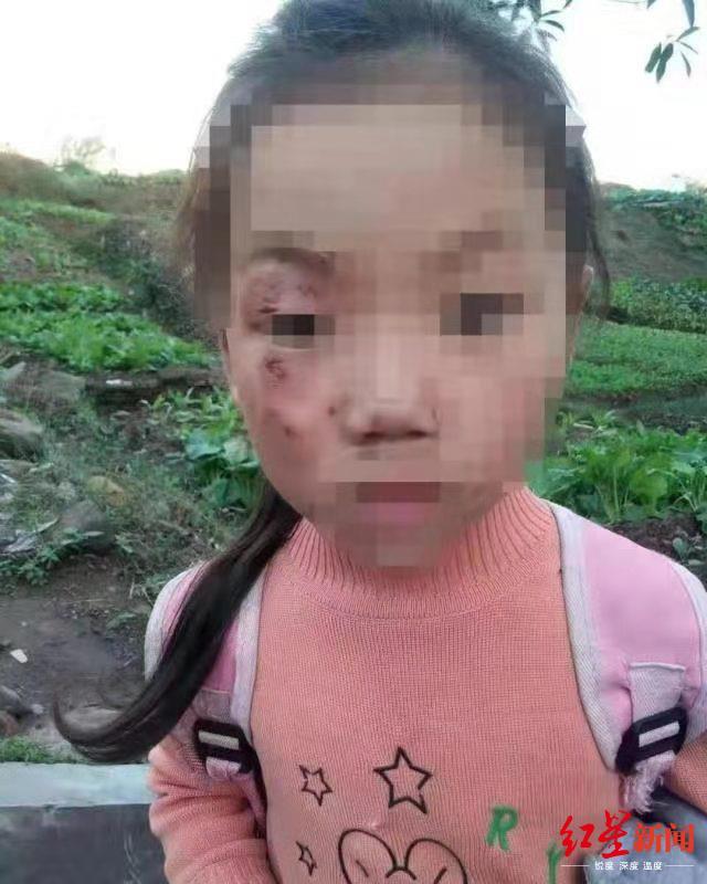 """网传江安女童遭""""后奶奶""""虐待,当地回应确有此事:监护权已临时变更"""
