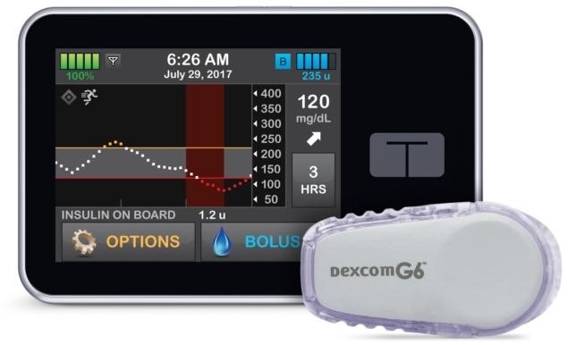 FDA批准用于1型糖尿病患者的新型闭环胰岛素输送系统