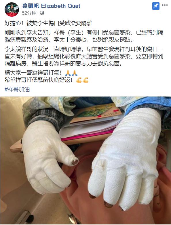 被香港暴徒烧伤的李伯伤口受感染