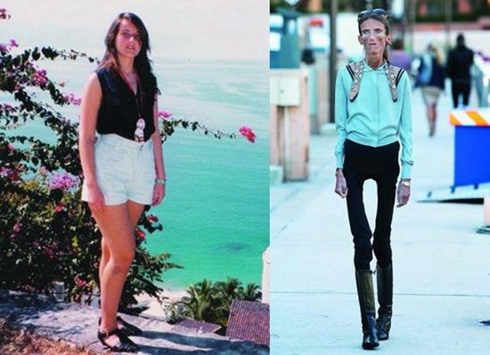"""2012年,厌食症患者瓦莱里娅·莱维汀站出来接受采访,提醒人们关注厌食症问题。她16岁时127斤,39岁时只有54斤(右图)。""""我收到不少女孩子的信,想让我教她们怎样才能像我一样。""""(资料图片)"""