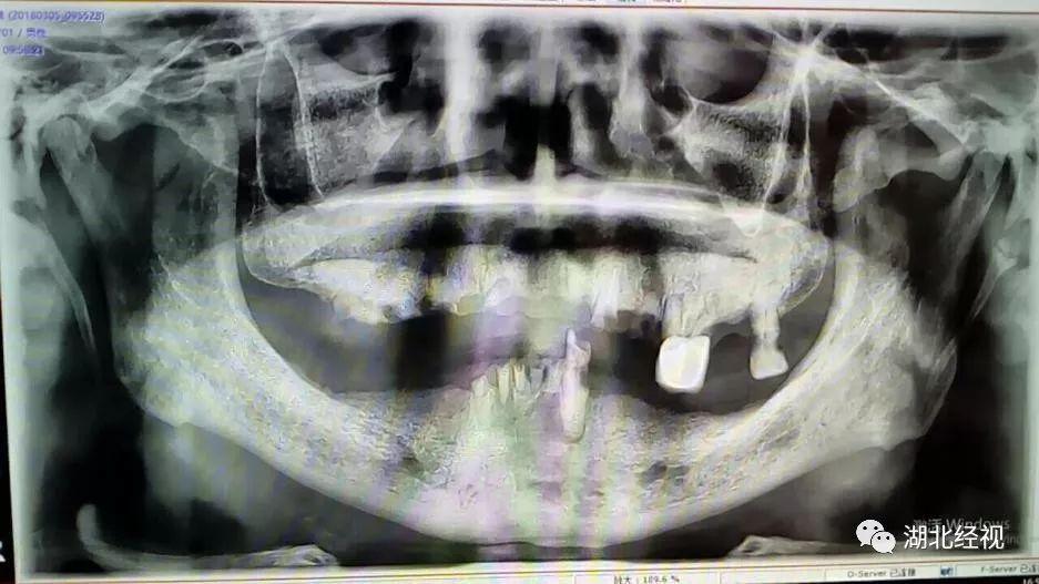 湖北户口恭喜!牙齿矫正、种植牙补贴发放!12月8日申领截止!