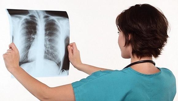 河北一高校同时发生多例肺结核病例,疾控中心:已指导学校开展体检、消毒