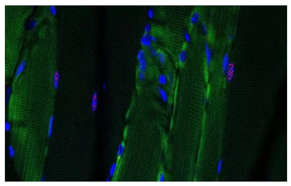 科学家调整CRISPR基因编辑工具  通过RNA解决肌肉萎缩症问题
