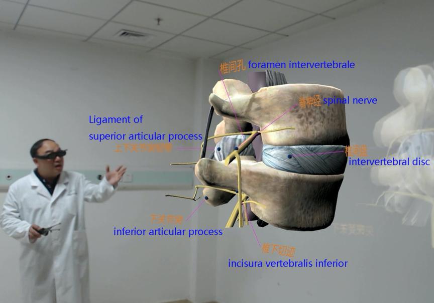 海李春▲R过V通解术讲技解椎的腰剖。