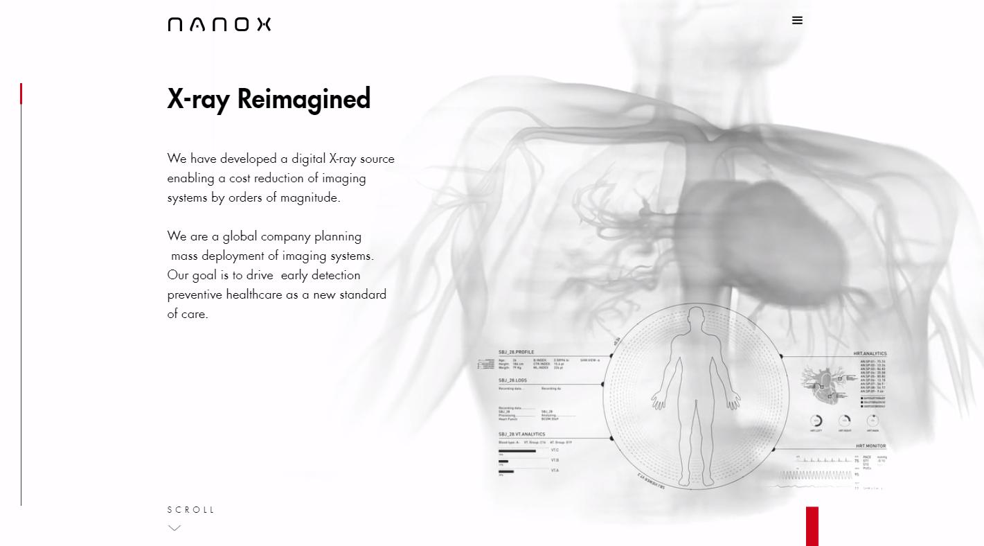 关注预防性医疗保健领域,以色列医疗技术公司「Nanox」部署数字化医学成像系统