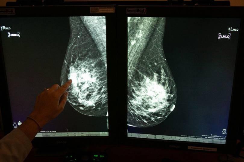 谷歌发布新的AI乳腺癌检测系统,误诊和漏诊率均低于专业放射科医生