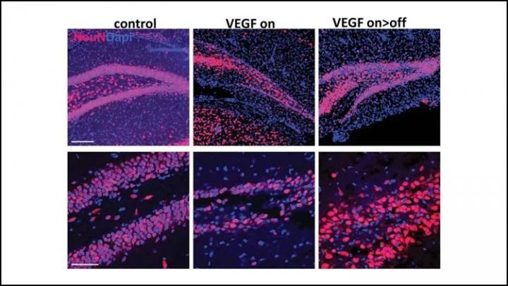 神经细胞再生能修复受损脑区