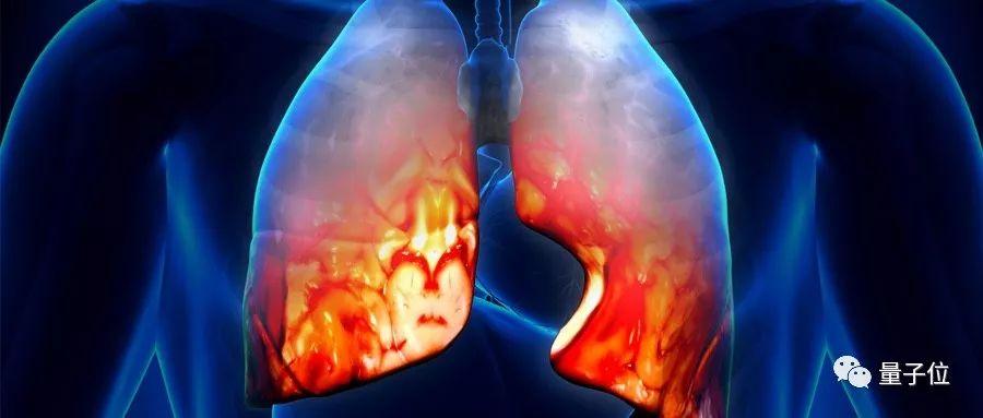 一文看懂武汉肺炎病毒最新研究:病毒基因弱于非典,但分子变异性更强