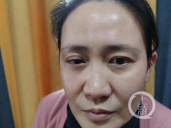 武汉医学教授右眼视网膜脱离 质疑爱尔眼科治疗不当