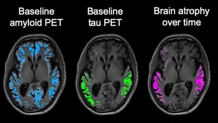 新脑成像技术预示可更早预测与阿尔茨海默病相关的神经退行性疾病