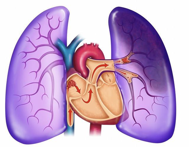肺有毛病的人,睡觉时会有3种异常,一个没占,肺脏还算健康