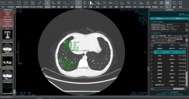 平安智慧医疗火线支援全国1500+家医院新冠肺炎CT阅片 科技助力疫情防控