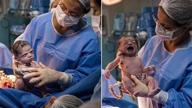 """刚出生宝宝""""怒视""""产科医生 满脸潜台词:就不哭 脐带剪断秒变脸"""