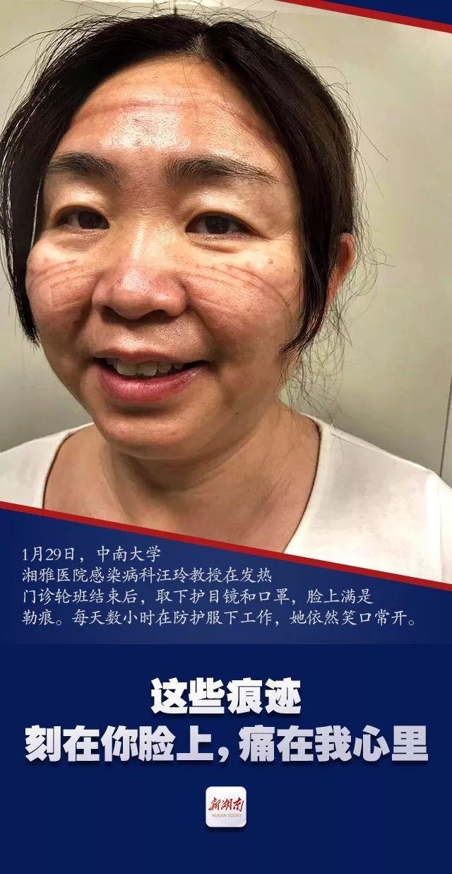 """满脸勒痕,依旧美丽,向战""""疫""""前线的中南湘雅医护人员致敬图片"""