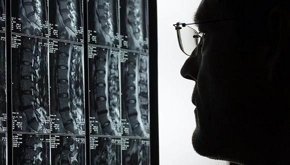 AI技术能给国内排长队的核磁检查带来哪些改变?
