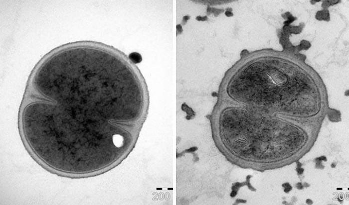 对抗超级细菌新武器!抗菌肽使现有抗生素效果提升百倍