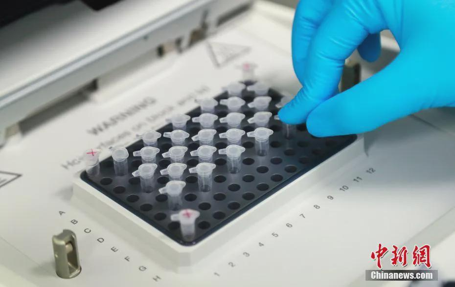 新冠疫苗临床试验志愿者:一切安好图片