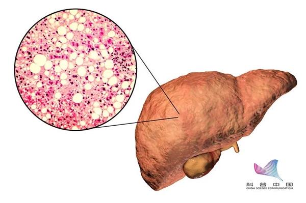 脂肪肝只有胖人会得?瘦子更要当心!