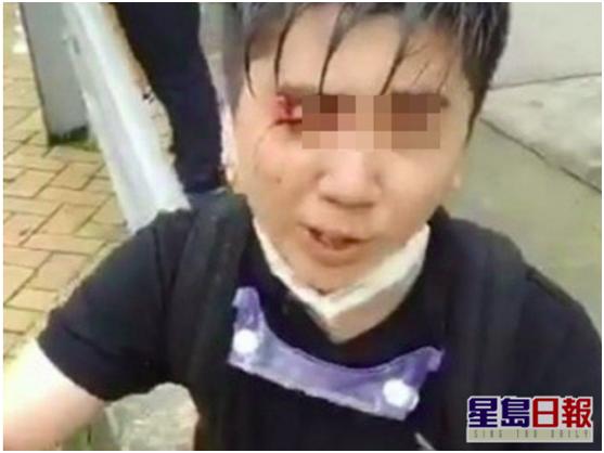 暴力冲击香港警方防线教师 未获学校续约图片