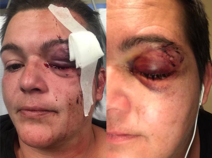 △记者琳达·蒂拉多被击中的左眼